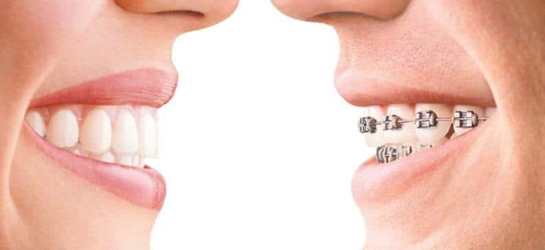 Ortodoncia en Sant Joan Despí